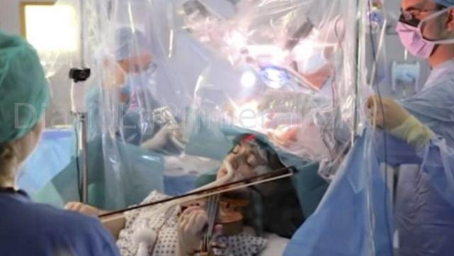 Paciente Toca El Violín Durante Su Propia Cirugía Cerebral Para Preservar Su Motricidad Fina